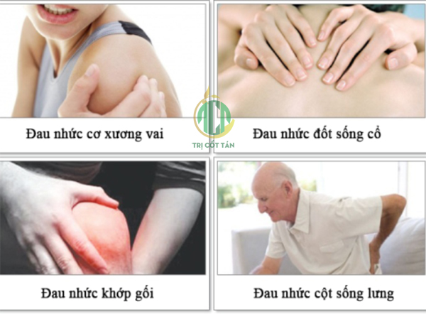 dau-nhuc-xuong-khop