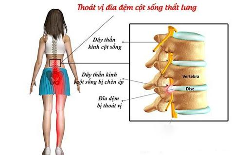 Nếu không chú ý kỹ người bệnh sẽ không thể phân biệt thoái hóa cột sống thắt lưng và các bệnh xương khớp khác